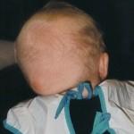 5 Mars 1999. 5½ månad gammal. Flare up på huvudet. Både platt & snett orsakad av svullnad/knöl på vänster sida.