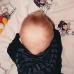 26 Mars 1999. 3 dagar senare. Knölen är väldigt stor. Vid den här tiden träffade vi Dr Frykstad. Ortopeden som sa att stortårna, tummen och knölen har ett samband.