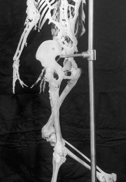 Harry Eastlack FOP-Skelett
