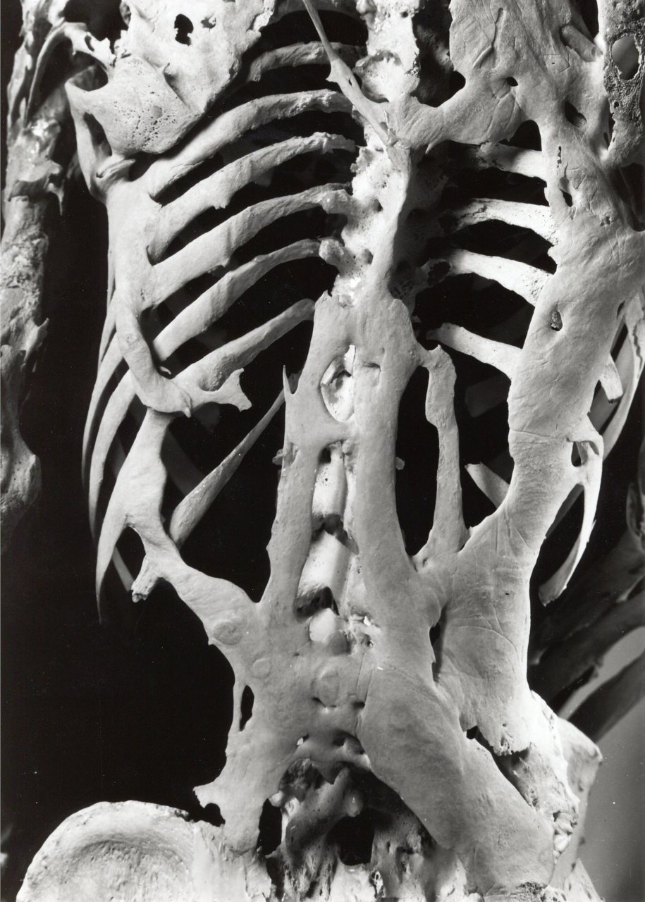 fibrodysplasia ossificans progressiva fop an overview Allowing the diagnosis of fibrodysplasia ossificans progressive due to the relation between the disease flares and the premenstrual period fibrodysplasia ossificans progressiva (fop) is a rare and incapacitating autosomal-dominant disease.