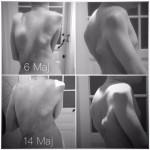 """6 Maj + 14 Maj 2016. Flare up på ryggen. Den stora svullnaden på vänster skuldra är bild på när den vuxit sig som störst efter en vecka.  Åtta dagar senare har svullnaden krympt. Se bild från januari; """"före"""" flare up och i Maj ; """"Under tiden & efter""""."""