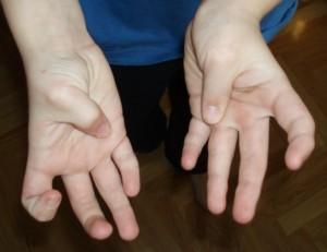 Korta tummar och en av dem är från födseln helt rak och saknar den yttre leden.