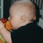 7 April 1999. På morgonen en vecka senare. Knölen är lite mindre. Men titta på nästa bild som är från samma dag.