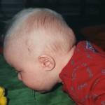 15 Mars 1999. En dag senare. Svullnaden har nästan försvunnit helt. Medan en liten knöl är kvar i mitten.