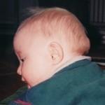 """16 Mars 1999. Dagen efter. Svullnaden är tillbaka lite nedanför de tidigare. En period som kallas """"overlapping flare-ups"""".  Det innebär att när en svullnad/flare up avtar så kommer en ny flare up direkt. Det här pågick fram till juni 1999."""