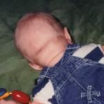 19 Mars 1999. 3 dagar senare. Huvudet ser slätare ut. Jag tror och hoppas det skall försvinna helt snart.