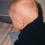 23 Mars 1999. Bara 4 dagar senare. En ny svullnad har tagit form. Hugo är nu 6 månader.