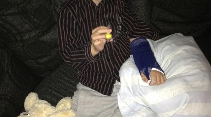 Anton 5år har FOPoch bruten handled och slagit i höften, en riktig skitkombination