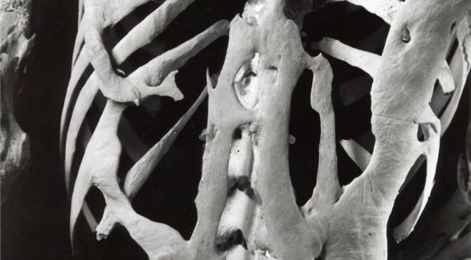 Skelett med FOP-ben. Harry Eastlack 1933-1973. Finns idag på The Mutter Museum i Philadelphia.