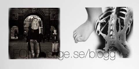 BloggLssStodEller1